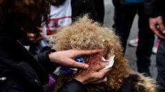 ΕΛΜΕ Ημαθίας:Για το άγριο χτύπημα της κυβέρνησης στους διαδηλωτές εκπαιδευτικούς!